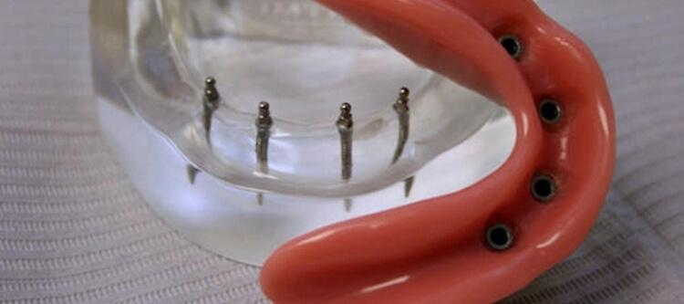 Преимущества протезирования на миниимплантах