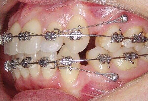 Где применяются мини версии в ортодонтии