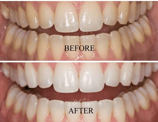 До и после отбеливания зубов системой Opalescence