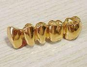 Примерная цена золотой коронки на зуб