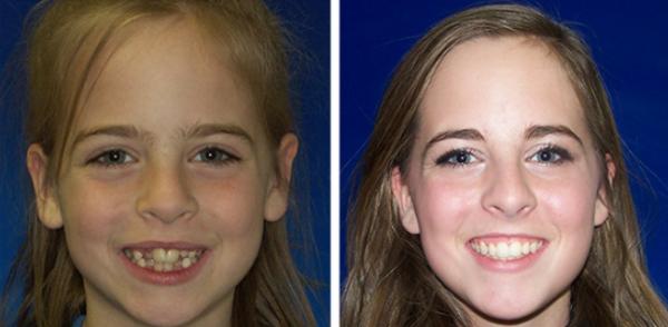 фото подростков до и после исправления патологии