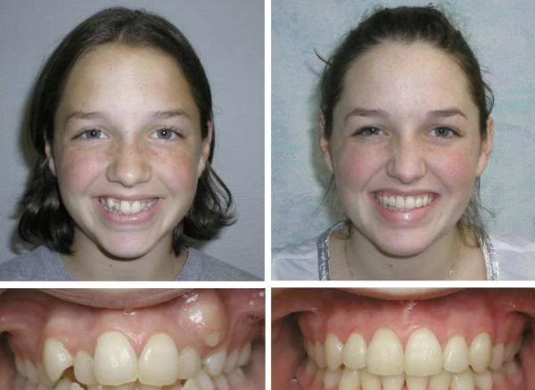 фото девочки подростка после лечения