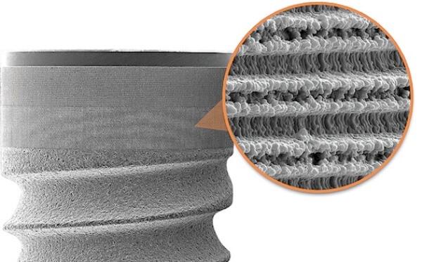 Применение технологии Laser-Lok в имплантах Биогоризонт