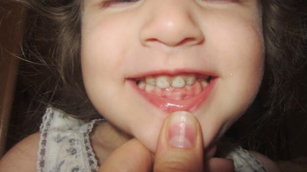 как лечить ребенка при обнаружении глубокого прикуса