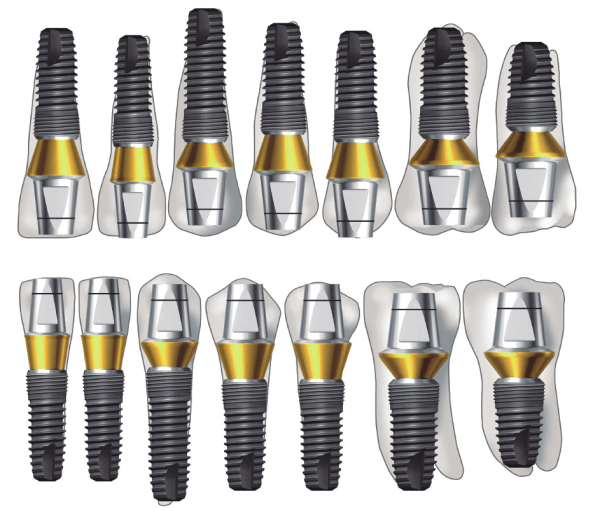 Разнообразие имплантов Имплантиум
