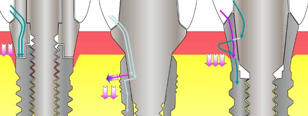 Преимущества использования конструкции с внутренним конусом