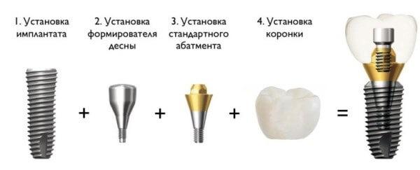 Этапы установки имплантата