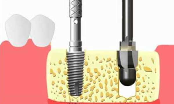 Преимущества фирменных инструментов для установки имплантов Имплантиум