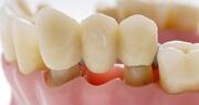 Какие несъёмные зубные протезы лучше использовать
