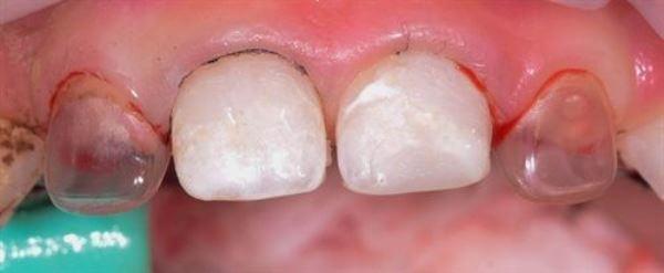 Безопасность использования протезов для молочных зубов