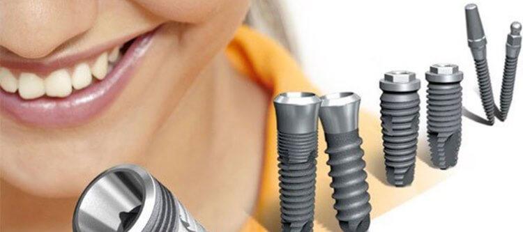 Какие факторы влияют на срок службы имплантов зубов