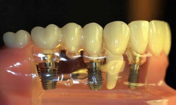 Основные характеристики имплантов зубов