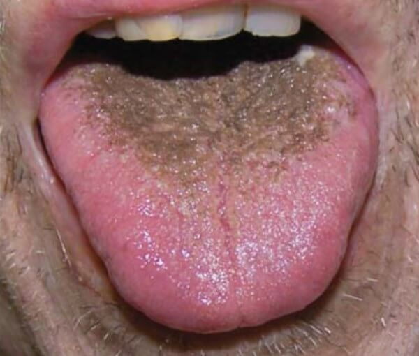 Характеристики зеленого налета на языке