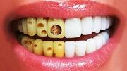 Как правильно очистить зубы от желтого налета
