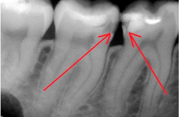 На какие раздражители реагирует зуб при повреждении эмали