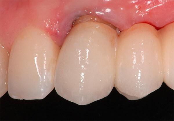 Особенности зубной боли при периодонтите