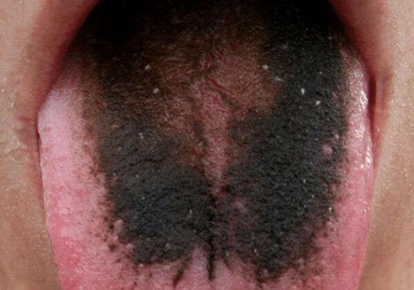Какие факторы провоцируют развитие черного волосатого языка