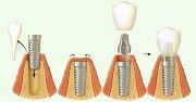 Сколько этапов необходимо для установки при имплантации зубов