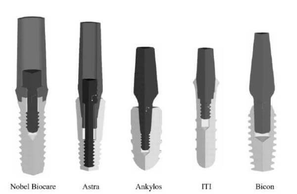 Плюсы и минусы имплантов Bicon