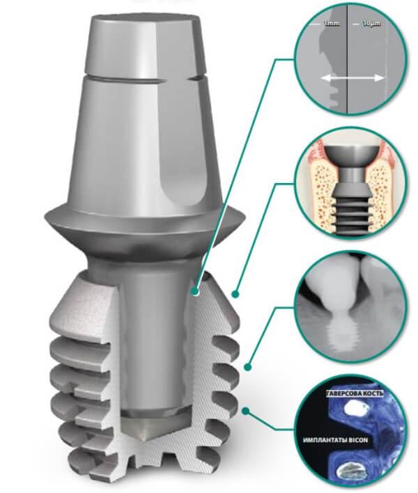 Как обеспечивается надежность имплантов Bicon