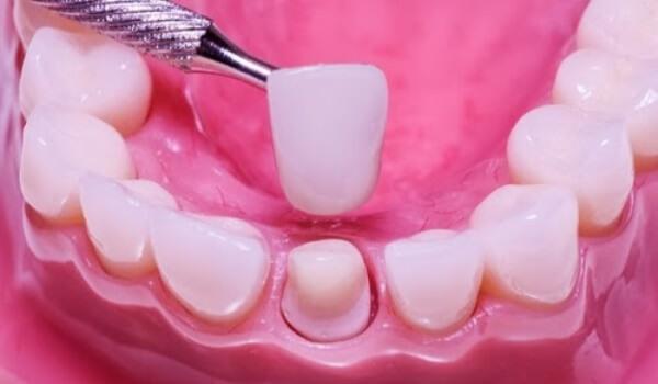 koronka-ili-implant_1