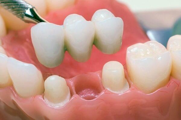 koronka-ili-implant_2