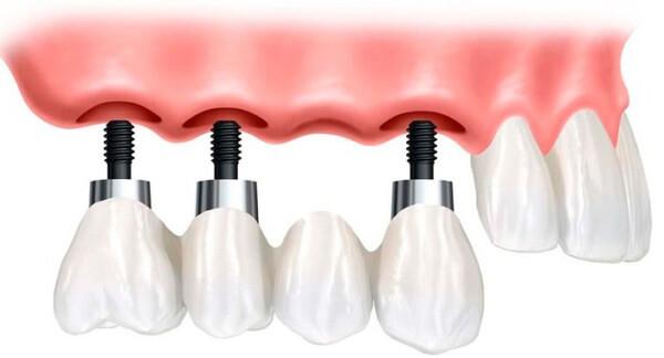 koronka-ili-implant_4
