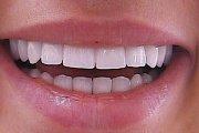 Плюсы и минусы установки керамических коронок на передние зубы