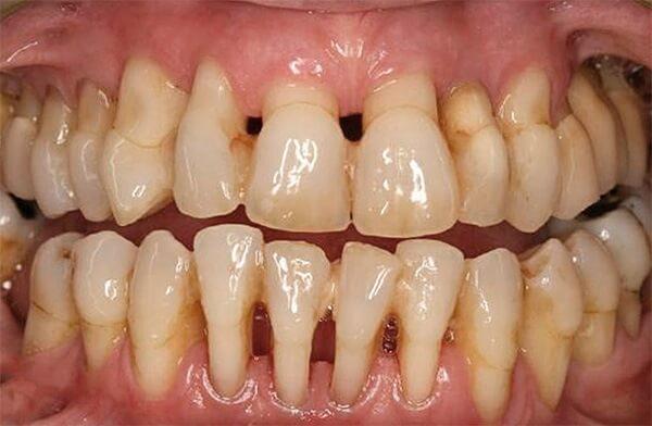 Как зубные пасты способствуют лечению пародонтоза