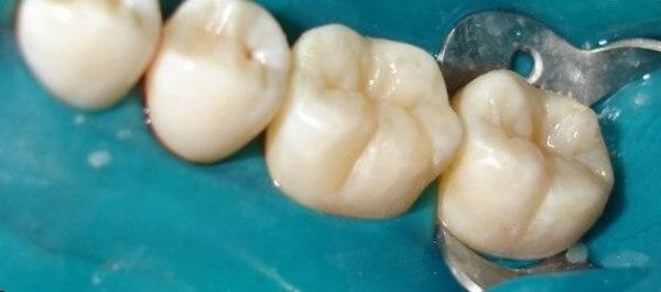 Методы лечения поверхностного кариеса