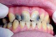 Отличительные особенности глубокого кариеса передних зубов