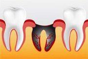 Последовательность лечения альвеолита после удаления зуба