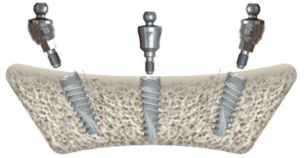 Качество имплантов SGS