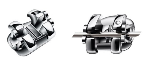 Конструктивные особенности брекетов Smart Clip