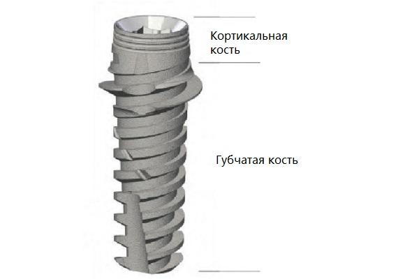 implantyi-korteks_5