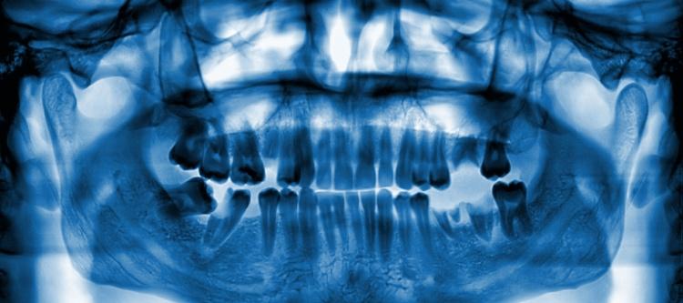 можно ли делать рентген зуба при беременности на 3 неделе
