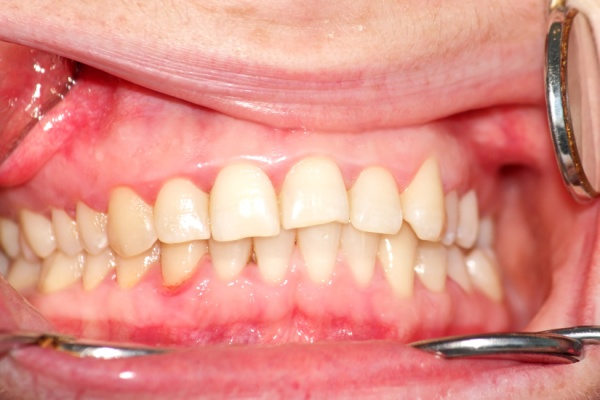 консультация ортодонта онлайн бесплатно