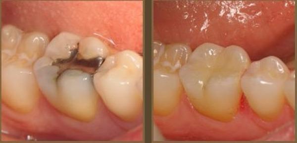 Пломба в зуб своими руками