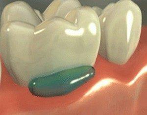 j pro крем для аппликационной анестезии