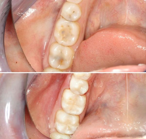 стоимость установки пломбы на зуб