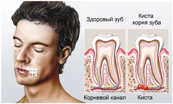 после удаления зуба у ребенка поднялась температура и не падает