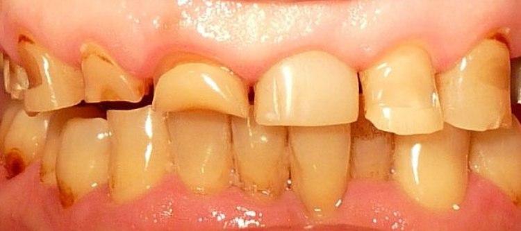 некариозные поражения зубов у детей и взрослых