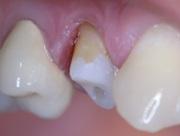 лечение некариозных поражений зубов