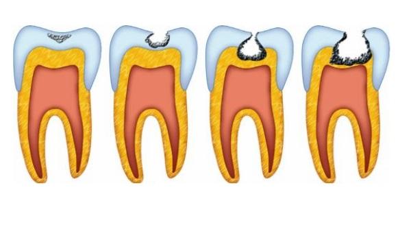 Кариес зубов и его классификация по Блэку