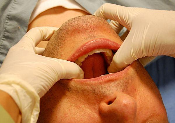 Подвывих челюсти симптомы и лечение