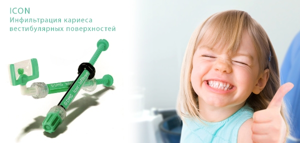 Icon метод лечения кариеса детская клиника