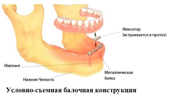 Балочный протез на имплантах показания