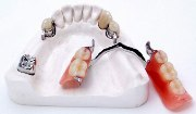 Устройство бюгельного протеза Бредент