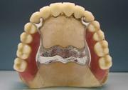 Бюгельный протез на верхнюю челюсть с замком