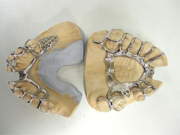Бюгельный протез шинирующий фото